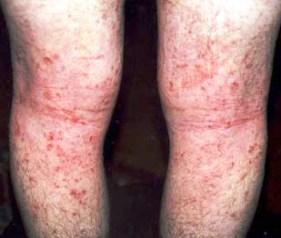 Atopitchesky la dermatite sur les lèvres de la photo chez les adultes