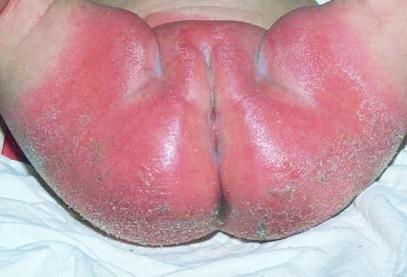 Traitement de la dermatite couches - Traitement pour eviter les fausses couches ...