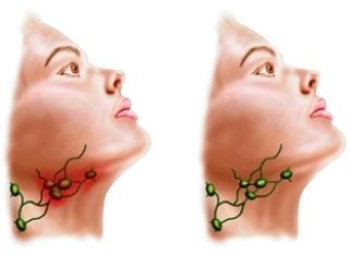 lupus symptômes douleurs