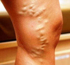 Le traitement de la varicosité des pieds par le moyen national