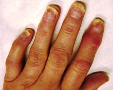 Photo d'arthrite psoriasique