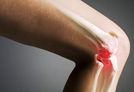 Ostéomyélite: symptômes, traitement de l'ostéomyélite